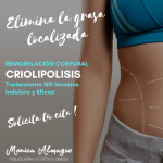 criolipolisis en mallorca